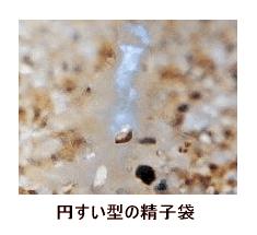 ウーパールーパーの精子袋